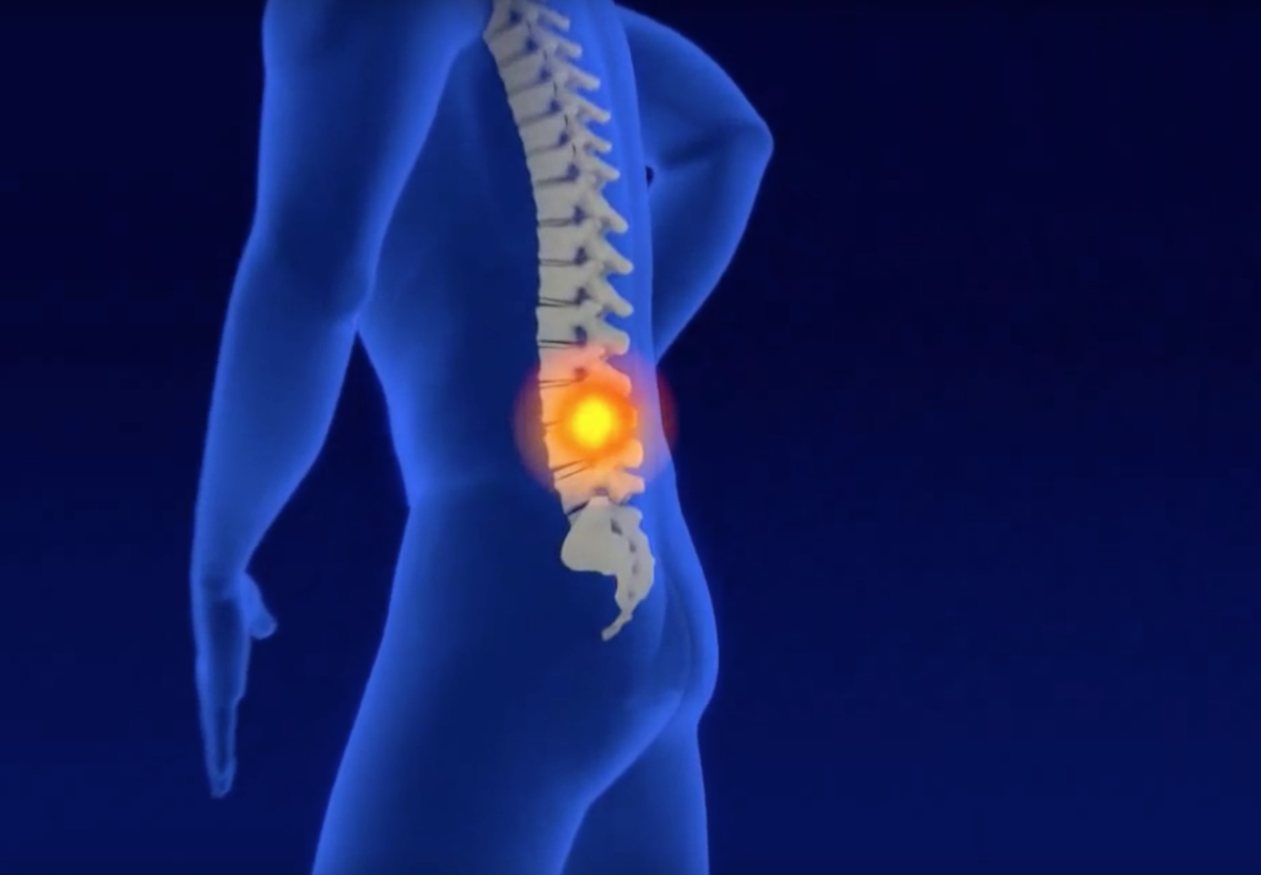 biomag canarias -magneto terapia