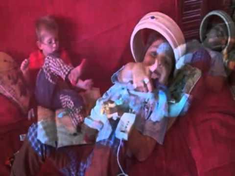 Magnetoterapia  niños prematuros